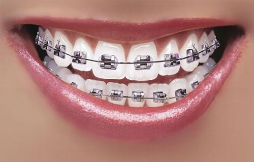 pomoć fixed braces